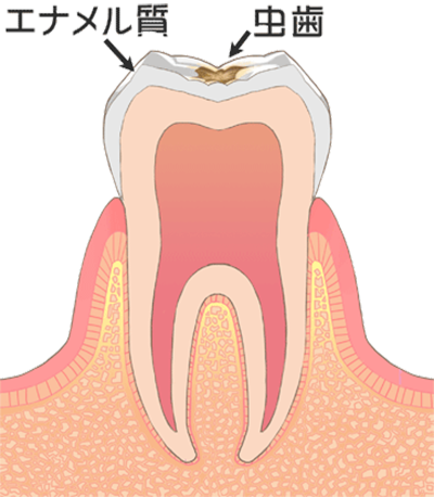 ②徐々に虫歯になっていきます