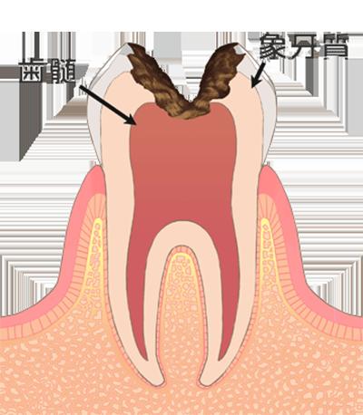 ④虫歯が神経まで進み、とても危険な状態です