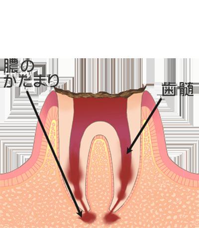 ⑤歯が完全に溶けているため、抜歯を行う必要があります
