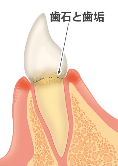 ②歯垢(プラーク)がたまった状態を放置していくと、歯肉に炎症が起き、隙間が徐々に開いていきます