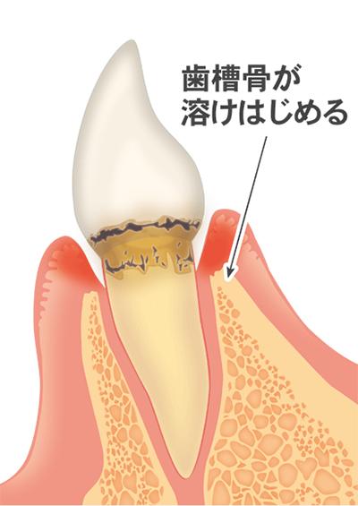 ③歯肉の炎症が悪化し、歯周病菌が増えていきます