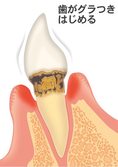 ④炎症がさらに拡大し、悪化すると歯槽骨も半分近くまで溶け始め、歯がどんどんグラグラしていきます